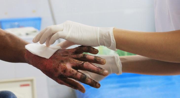 Severe Injury
